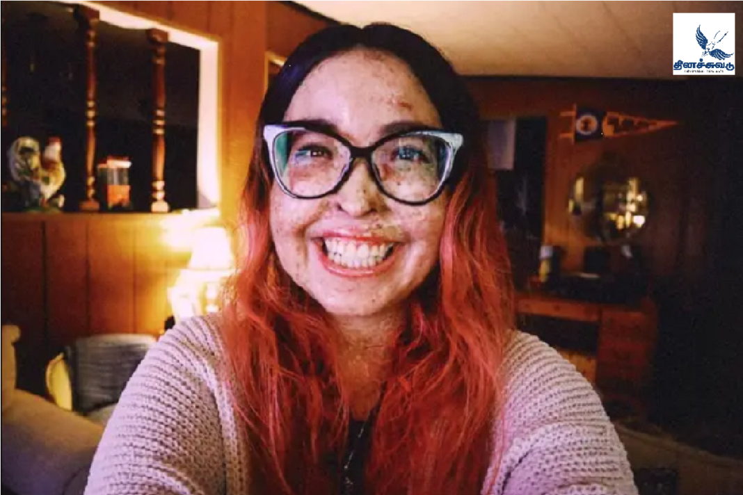 Andrea, a woman from California, has been diagnosed with geroderma pigmentosum, a skin cancer.